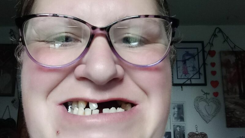Mum removes 11 of own teeth because she couldn't afford to see private dentist